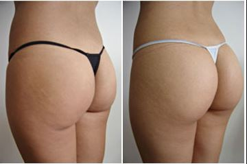 augmentation fesses tunisie