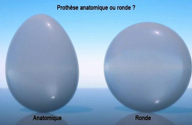 choisir protheses mammaires