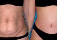 chirurgie-plastie-abdominale